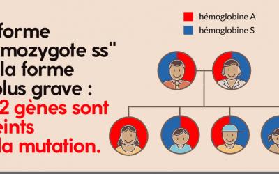 Drépanocytose : symptômes et traitement